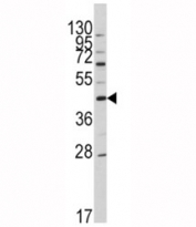 Western blot analysis of APOA5 antibody and HL-60 lysate. Predicted molecular weight: ~41kDa.