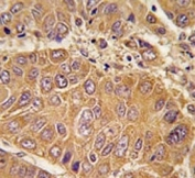 IHC analysis of FFPE human hepatocarcinoma tissue stained with APOA1 antibody