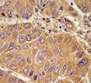 IHC analysis of FFPE human hepatocarcinoma tissue stained with APOA1 antibody