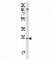 Western blot analysis of APOA1 antibody and HepG2 lysate. Predicted molecular weight ~30kDa.