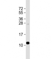 Western blot testing of human plasma lysate with Apolipoprotein A-II antibody at 1:1000. Expected molecular weight ~11 kDa.