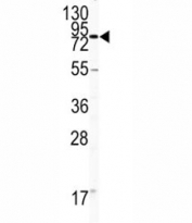 Western blot analysis of CD31 antibody and HL-60 lysate.