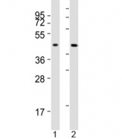 Western blot testing of ACAT1 antibody at 1:2000 dilution. Lane 1: human SW620 lysate; 2: mouse liver lysate; Predicted molecular weight: ~45kDa.