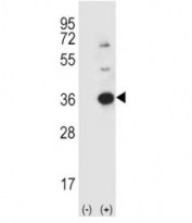 Western blot analysis using anti-Caspase-3 antibody and 293 cell lysate (2 ug/lane) either nontransfected (Lane 1) or transiently transfected (2) with the CASP3 gene.