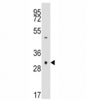 Western blot analysis of anti-Caspase-3 antibody and NCI-H460 lysate.  Expected size ~32 KDa