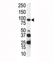 Western blot analysis of AXL antibody and SKBR3 cell lysate. Predicted molecular weight is 104 kDa unglycosylated, 120-140 kDa with glycosylation