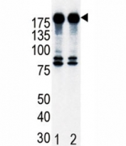 Western blot analysis of ErbB2 in T47D cell lysate, either noninduced (Lane 1) or induced with HRG (2).