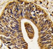 IHC analysis of FFPE human prostate carcinoma tissue stained with anti-HER2 antibody