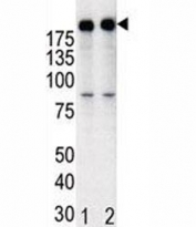 Western blot analysis of anti-HER2 in T47D cell lysate, either noninduced (Lane 1) or induced with HRG (2).