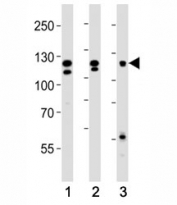 Western blot analysis of lysate from (1) HeLa, (2) K562 and (3) MCF-7 cell line using FGFR2 antibody at 1:1000. Predicted molecular weight: 80-120 kDa.