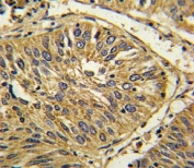 IHC analysis of FFPE human lung carcinoma with FGFR2 antibody
