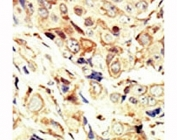 IHC analysis of FFPE human breast carcinoma tissue stained with the IGF1R antibody