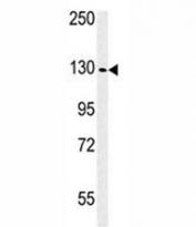 Western blot analysis of IGF1R antibody and WiDr lysate. Predicted molecular weight: ~200 kDa (pro), 120-130 kDa (alpha), 90-97 kDa (beta).