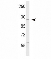 ABL1 antibody western blot analysis in MCF-7 lysate. Predicted molecular weight ~120-150 kDa.