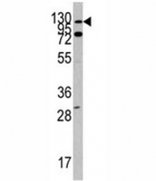 Western blot analysis of ABL1 antibody and Y79 lysate. Predicted molecular weight ~120-150 kDa.