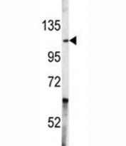 Western blot analysis of c-Abl antibody and A2058 lysate. Predicted molecular weight ~120-150 kDa.