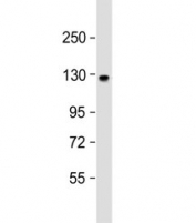 Western blot testing of human brain lysate with ACK1 antibody at 1:1000. Predicted molecular weight ~114 kDa.