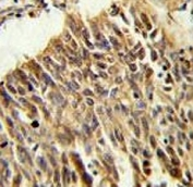 HIF1A antibody IHC analysis in formalin fixed and paraffin embedded lung carcinoma.