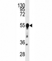 Western blot analysis of BACE1 antibody and mouse heart tissue lysate.