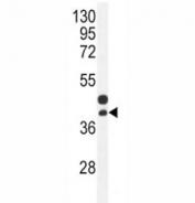CTGF antibody western blot analysis in mouse bladder tissue lysate. Predicted molecular weight ~38kDa.