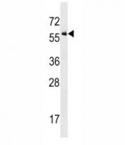 ALK2 antibody western blot analysis in U937 lysate