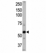 Western blot of ALK1 antibody and mouse heart tissue lysate. Predicted molecular weight ~60 kDa.