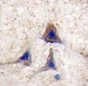 IHC analysis of FFPE human brain tissue stained with BRAF antibody
