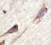 IHC analysis of FFPE human brain tissue stained with BRAF antibody