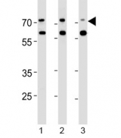 Acetylcholinesterase antibody western blot analysis in human 1) Jurkat, 2) Raji and 3) Y79 lysate. Predicted molecular weight ~68 kDa with a possible ~58 kDa isoform.