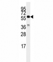 Western blot analysis of CDC25C antibody and K562 lysate. Expected molecular weight: ~53/60 kDa (unmodified/phosphorylated).