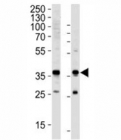 Western blot analysis of lysate from HeLa, HUVEC cell line (left to right) using anti-GAPDH antibody diluted at 1:1000 for each lane. Predicted molecular weight ~36kDa.