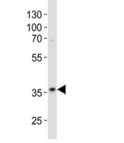 Western blot analysis of lysate from A375 cell line using anti-GAPDH antibody diluted at 1:500. Predicted molecular weight ~36kDa.
