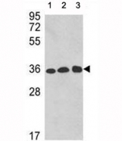 Western blot analysis of GAPDH antibody and 1) A2058, 2) A375, and 3) CEM lysate. Predicted molecular weight ~36kDa.