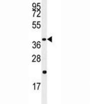 Western blot analysis of Caspase-9 antibody and Jurkat lysate