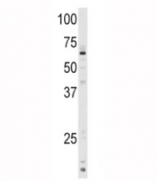 Western blot analysis of CYP1A1 antibody and mouse lung tissue lysate. Predicted molecular weight ~58 kDa.