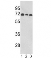 Western blot analysis of ABI1 antibody and human 1) MCF-7, 2) CEM, and 3) Jurkat lysate. Predicted molecular weight ~55 kDa.