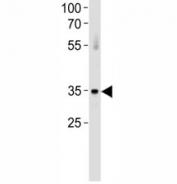 ATF7 antibody western blot analysis in huamn placenta tissue lysate. Predicted molecular weight: isoforms of ~53/51/34/13kDa may be detected.