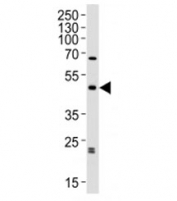 Western blot analysis of lysate from human brain tissue lysate using ABHD12 antibody diluted at 1:1000. Predicted molecular weight ~45 kDa.