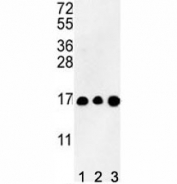 Western blot analysis of HIST3H3 antibody and (1) CEM, (2) K562, and (3) HL-60 lysate