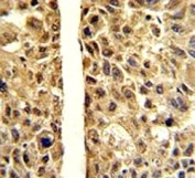IHC analysis of FFPE human hepatocarcinoma stained with ARG1 antibody