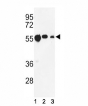 Western blot analysis of anti-beta Tubulin antibody and (1) CEM, (2) MCF-7, and (3) MDA-MB231 lysate.