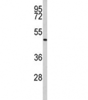 Western blot analysis of Acrosin antibody and human Jurkat lysate. Predicted molecular weight ~46 kDa.