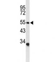 Western blot analysis of ASIC1 antibody and human CEM lysate. Predicted molecular weight ~59 kDa.