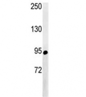 Western blot analysis of ABCF1 antibody and NCI-H460 lysate. Predicted molecular weight ~96 kDa.