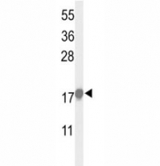 Western blot analysis of p21 antibody and HeLa lysate