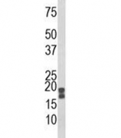 Western blot analysis of ACP1 antibody and human HeLa lysate. Predicted molecular weight 14-18 kDa (isoforms 1-3).
