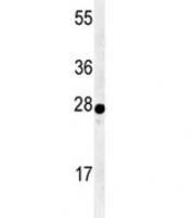 Western blot analysis of AANAT antibody and human Y79 lysate. Predicted molecular weight ~23 kDa.