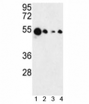 Western blot analysis of AIM2 antibody and 1) MCF-7, 2) HL-60, 3) K562 and 4) HeLa lysate. Predicted molecular weight 40-45 kDa.
