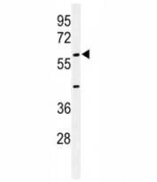 Western blot analysis of AMH antibody and 293 lysate. Predicted molecular weight ~60 kDa. Glycosylated homodimer seen ~ 140 kDa.