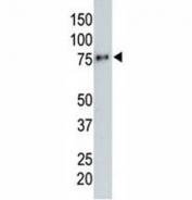 Anti-HA tag antibody testing a tagged recombinant protein.